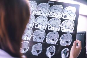 Dimentia Alzheimer's Disease THC
