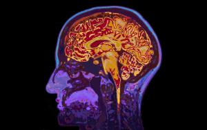 Human Brain Diagram Dementia