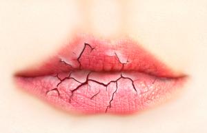 Cracked Dry Lips